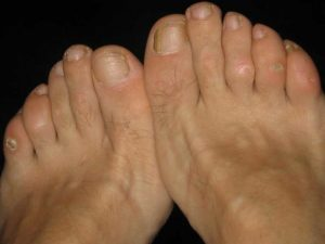routine footcare corns calluses