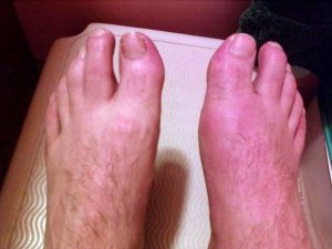 specialised footcare gout